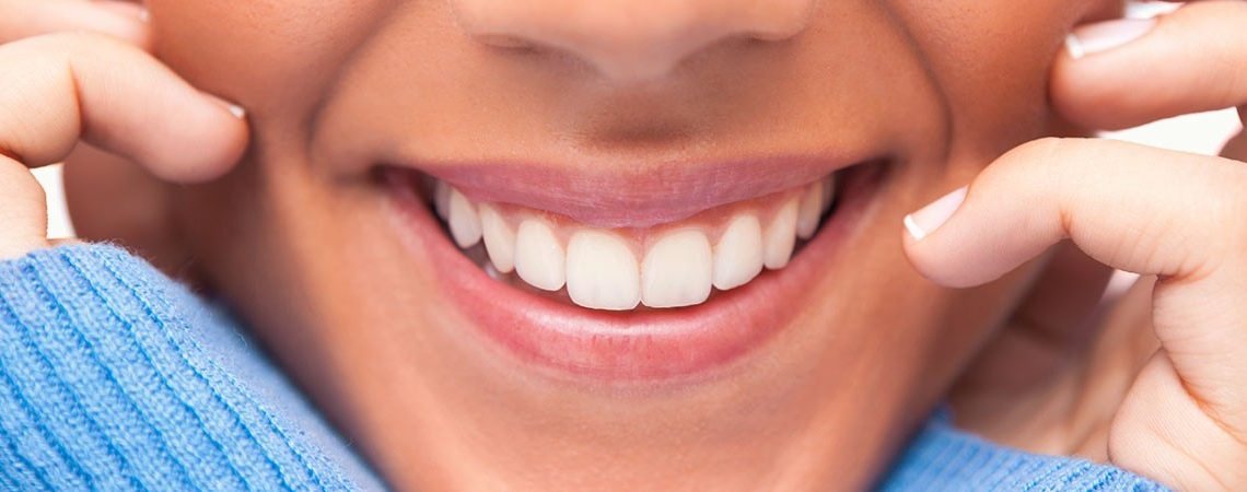 dental veneers naperville
