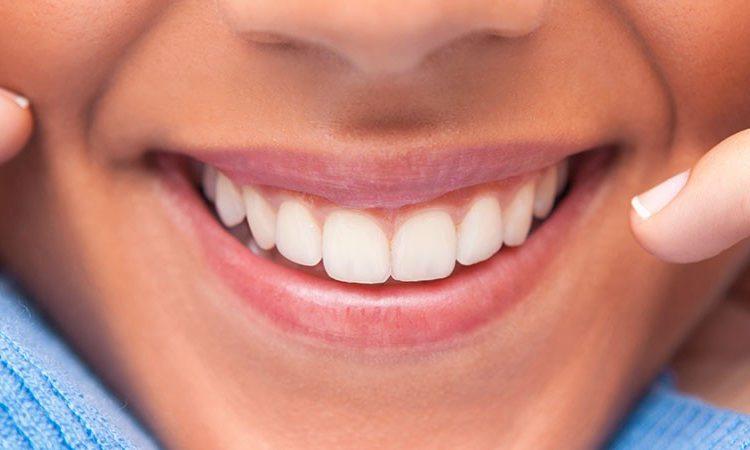 dental veneers naperville