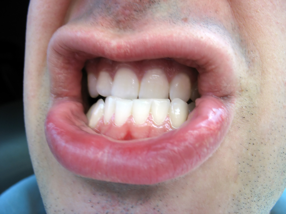 Risk factors for bruxism, teeth grinding