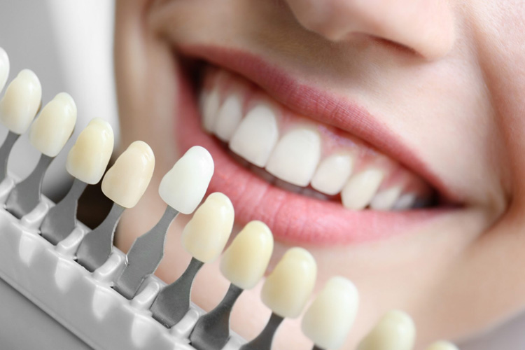 Top 7 Reasons To Choose Dental Implants